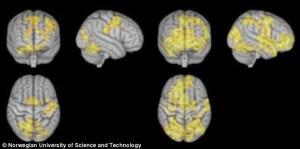 De vänstra bilder visar hjärnan under koncentrerande meditation, medan bilderna till höger visar hjärnan under icke-styrande meditation